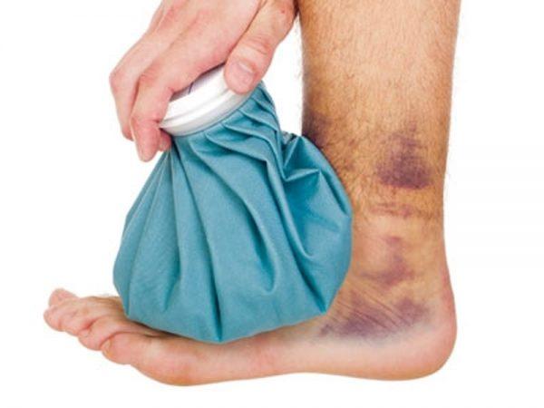 Sai lầm khi điều trị bong gân và điều nên làm khi bị bong gân